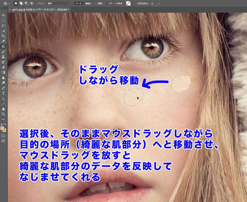 Photoshopで顔のそばかすを簡単に消す方法(パッチツール使い方)